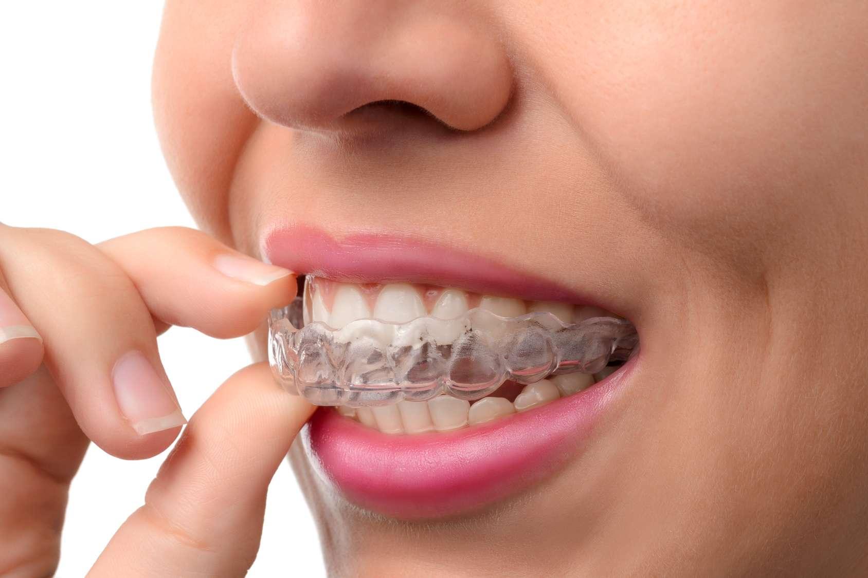 Dentista a Bergamo